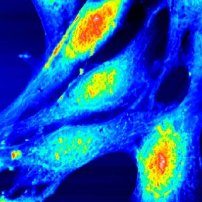 embryonic fibroblast cells oscillating mode 80µm